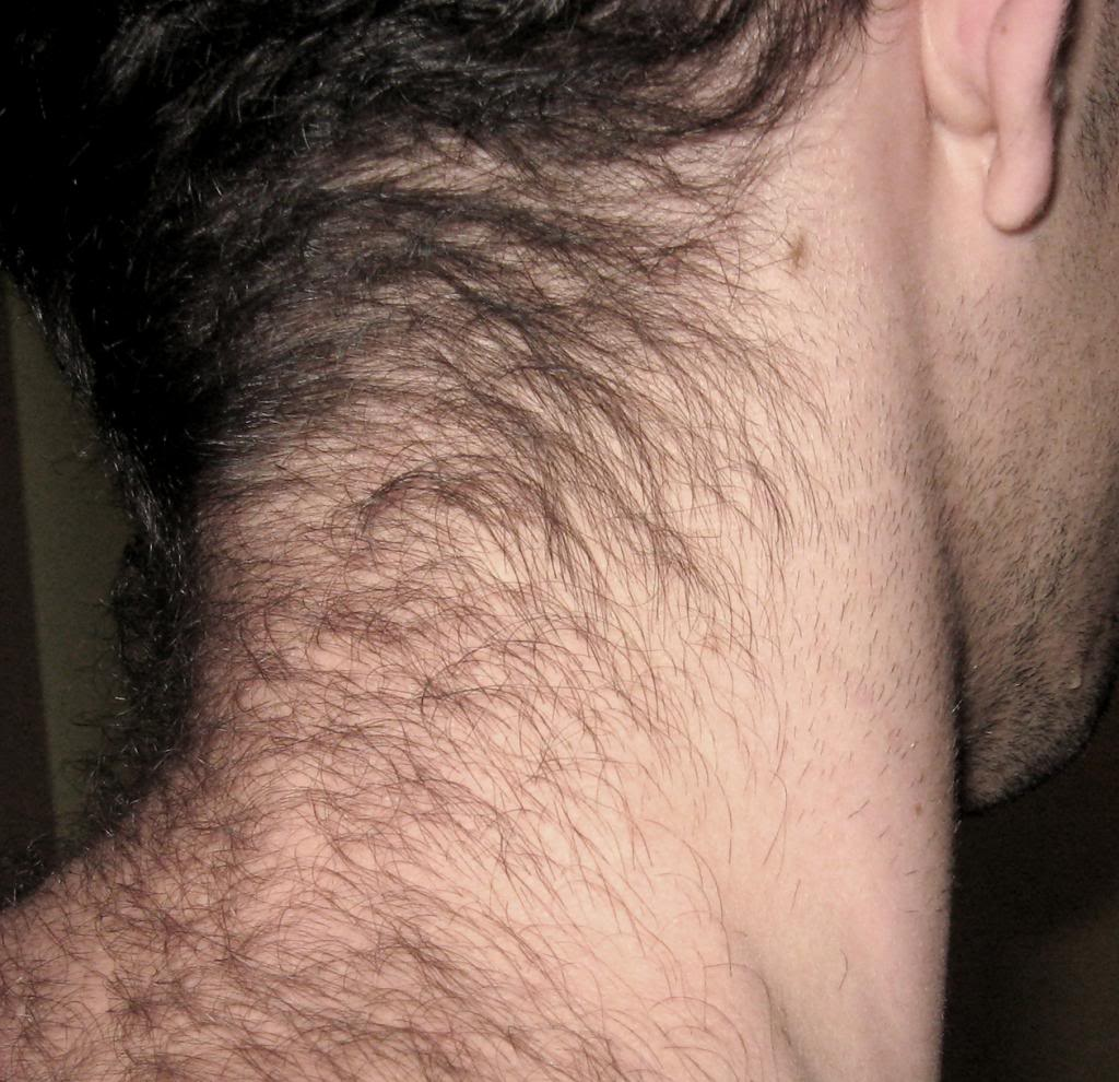 Neck Hair Ashley Weston